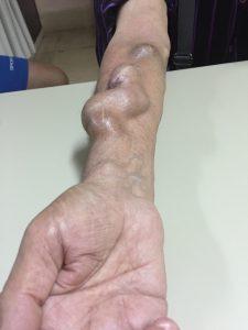Fistula arteriovenosa radiocefálica. Vena cefálica dilatada