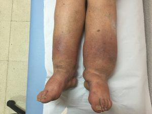 Tratamiento Linfedema de MMII en Málaga