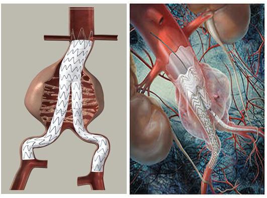 endoprótesis aórticas malaga