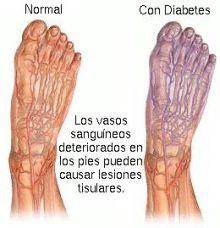 Tratamiento Pie Diabético en Málaga