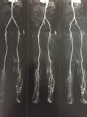 Angioma de Aorta y MMII en paciente con claudicación intermitente