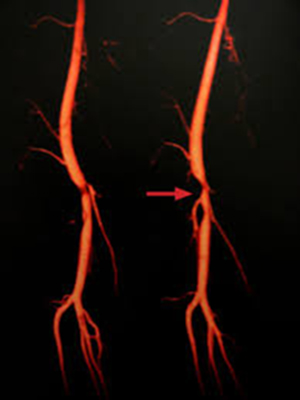 Estenosis de arteria femoral superficial