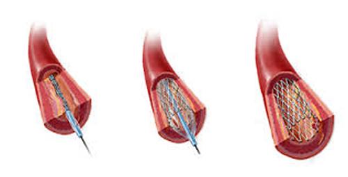 Implante de Stent