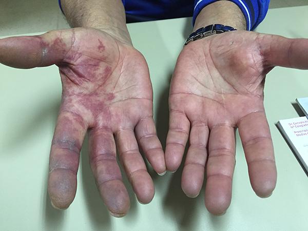 Isquemia Aguda MSD